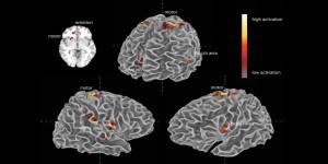 cervello, emozioni, musica, aree cerebrali, attivazione